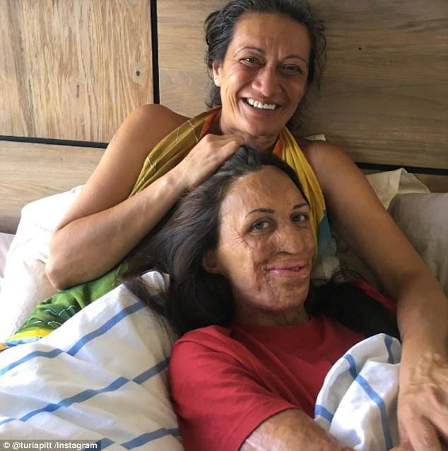 turia pitt and her mum