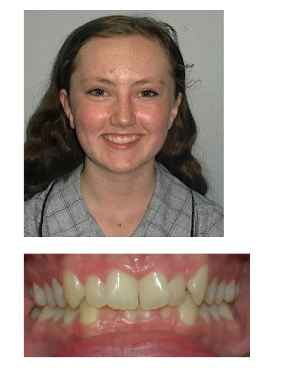 Katrina Transform Orthodontics
