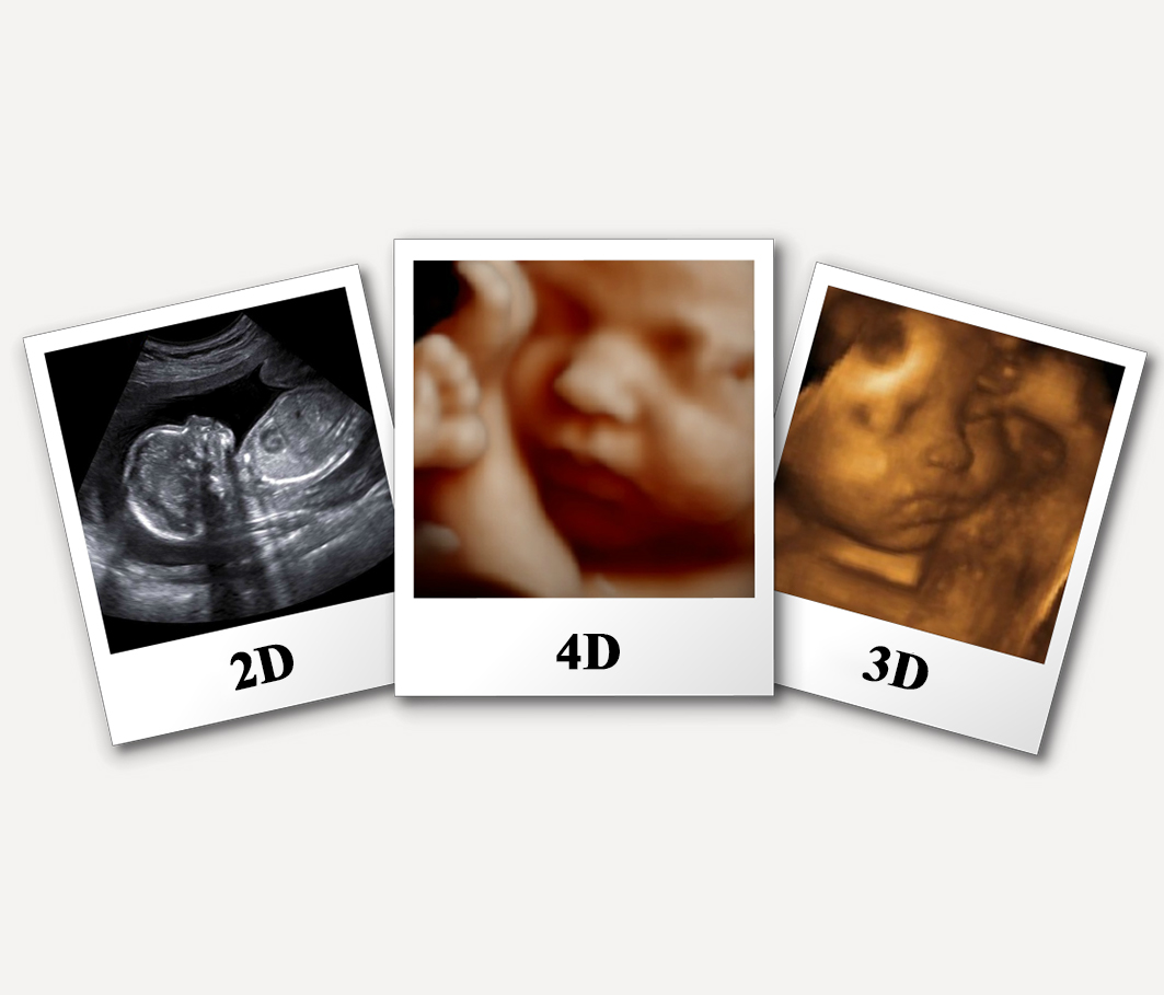 3D 4D ultrasound adelaide